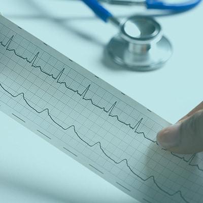prueba de esfuerzo electrocardiograma